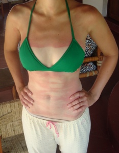 Paintbrush strokes of sunburn across Julie's stomach topped off with a lovely geometric sternum burn (and long pants hiding the offending legs)